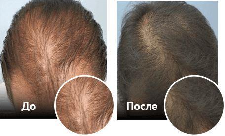 Миноксидил для мужчин, до и после пример 2