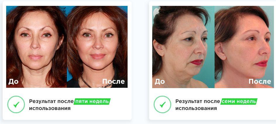 результаты использования маски